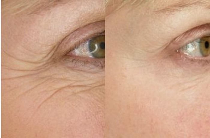 Wrinkle removal treatment in Aventura