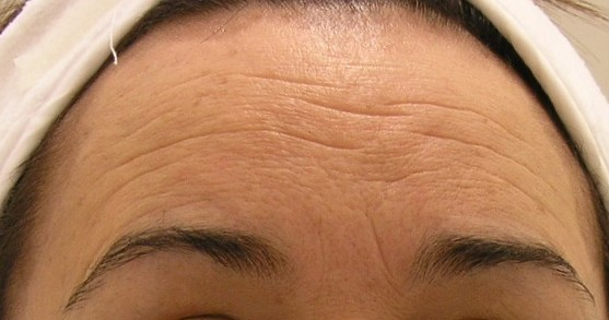 wrinkle removal treatment in Hollywood